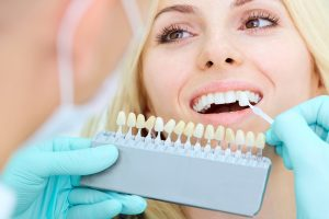 why choose Dental Health & Implant Center in Vancouver