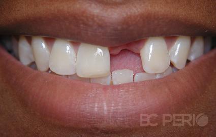 Photo Gallery Bc Perio Dental Health Amp Implant Centre
